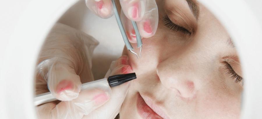 Nadelepilation Ausbildung:  sichere & fachgerechte dauerhafte Haarentfernung